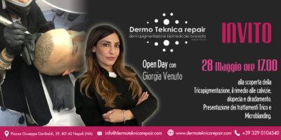 """""""Dermo Teknica Repair: Alla Scoperta Della Tricopigmentazione Come Rimedio Alla Calvizie"""""""